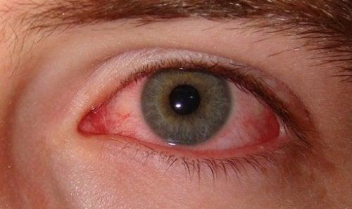 يؤثر القلق على عملية ترطيب العينين الطبيعية