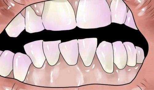 جير الأسنان – علاجات منزلية طبيعية تساعدك على التخلص من جير الأسنان