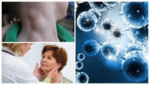 سرطان الغدد اللمفاوية – السرطان الصامت، سهل العلاج بشرط الاكتشاف المبكر