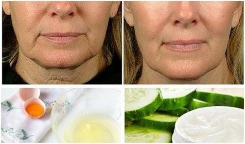 ترهلات الوجه – 5 علاجات منزلية فعالة لمكافحة هذه الترهلات المزعجة