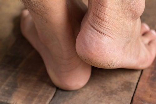 رجل يقف على قدم ويرفع الأخرى نتيجة آلام شوكة الكعب