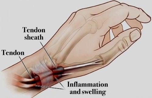 التهاب زليل الوتر – اكتشف أسباب إصابة الأوتار ووسائل العلاج