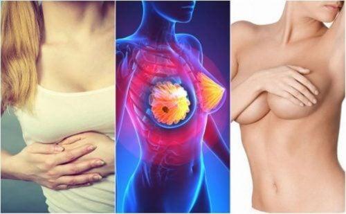 سرطان الثدي – 9 من الأعراض التي يجب على كل امرأة معرفتها