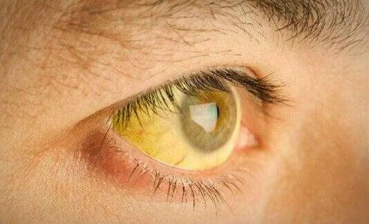 اصفرار الجلد اضطراب يعرف باسم اليرقان