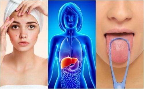 سموم الكبد – 7 علامات تحذيرية يرسلها الكبد عند زيادة السموم فيه
