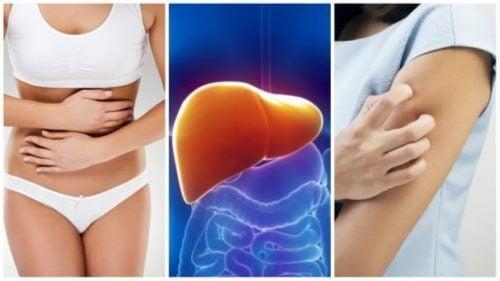 سموم الكبد – 8 أعراض تظهر عليك عندما يكون كبدك مثقلًا بها