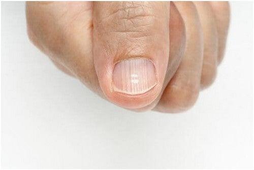 خطوط الأظافر – أسباب ظهورها وكيفية التخلص منها بشكل فعال ونهائي