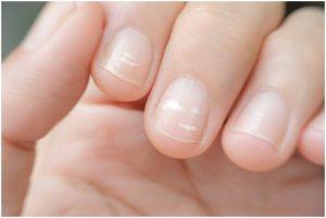 أصابع تظهر عليها مشكلة خطوط الأظافر