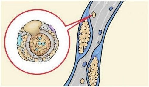 انسداد الشرايين – 5 أطعمة طبيعية لتنظيف الشرايين وتكسير الدهون المتراكمة فيها