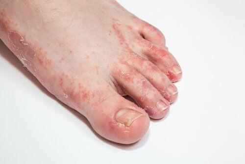 فطريات القدم - 3 علاجات فعالة تساعدك على علاج المشكلة