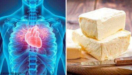 القلب – 5 أطعمة خطيرة تؤذي صحتك بشكل عام وقلبك بشكل خاص