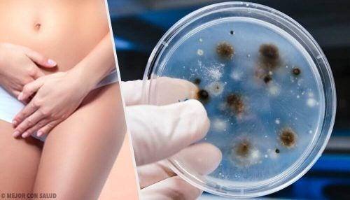 العدوى والالتهابات المهبلية: اكتشفي أنواع الحالة ومسبباتها المختلفة