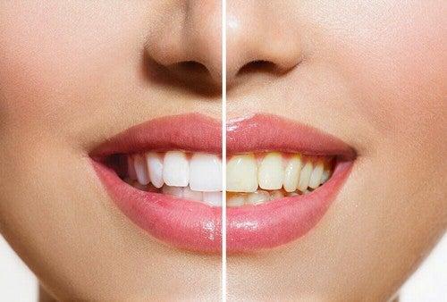 تبييض الأسنان – منتجات طبيعية ستساعدك على تبييض أسنانك