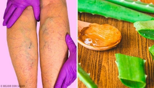 علاج الدوالي – تخلص من مشكلة الدوالي بالاستعانة بالألوة فيرا