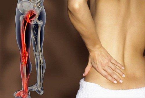 اكتشف كيف يمكنك التخلص من ألم العصب الوركي بالتمارين