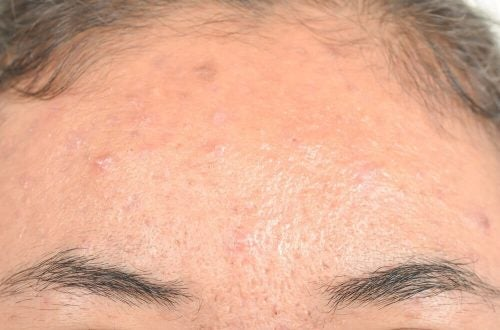 التهاب الجلد الدهني – علاجات طبيعية فعالة لمواجهة الحالة المزعجة