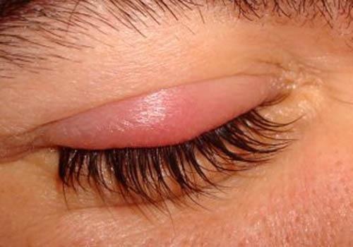 التهاب العين