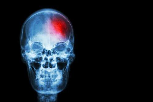 السكتة الدماغية - علامات السكتة الدماغية التي لا يجب تجاهلها أبدًا
