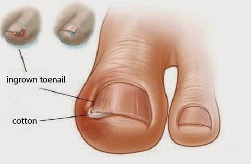 الظفر الناشب – 6 علاجات طبيعية قديمة لأظافر القدم الناشبة