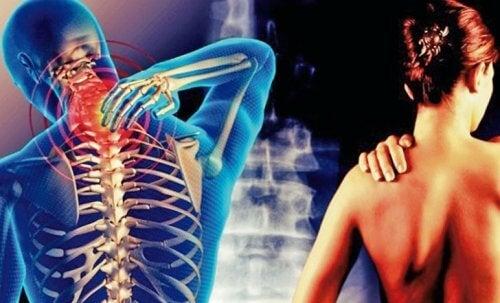 المتلازمة العضدية الرقبية – عندما يتمتد الألم من عنقك إلى ذراعيك
