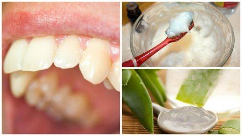 بلاك الأسنان – كافح اللويحات السنية باستخدام هذه العلاجات الطبيعية
