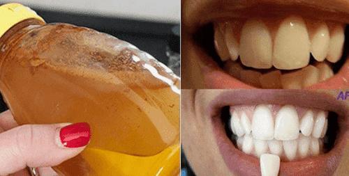 طريقة تبييض الأسنان بمكون طبيعي 100%