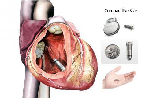 جهاز ميكرا داخل القلب