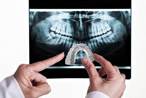 علاج صريف الأسنان