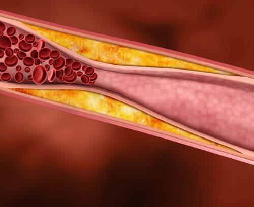 علاج الكولسترول من خلال العسل والثوم