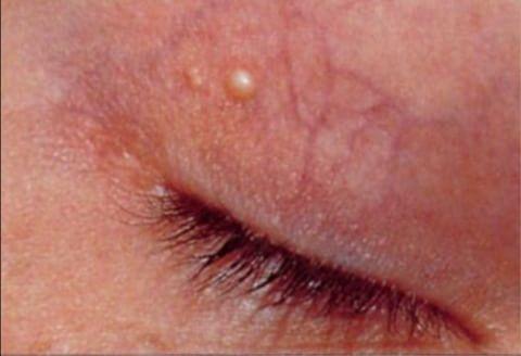 داء اللويحة الصفراء حول العينين