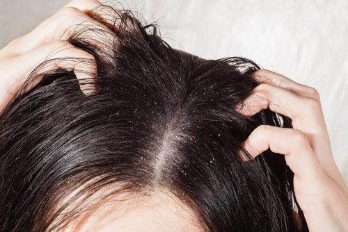 فطريات فروة الرأس - أفضل 6 علاجات لمحاربة فطريات فروة الرأس - لك العافية