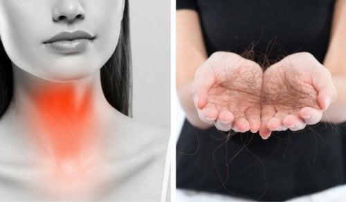 فقدان الشعر - 8 وسائل لمكافحة التساقط الناتج عن اضطرابات الغدة الدرقية