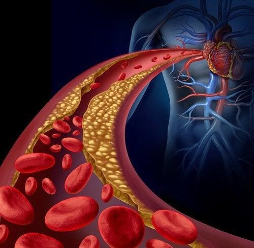 شرايين غير صحية ، الكوليسترول