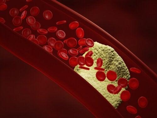 مقطع عرضي لشريان الدم