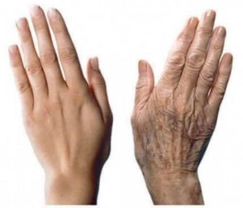 نضارة اليدين – 7 نصائح لاستعادة جمال اليدين ومكافحة علامات التقدم في العمر