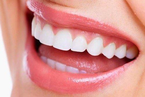 ابتسامة وأسنان بيضاء
