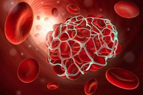 الجلطات والسكتة الدماغية – 8 أطعمة تساعدك على تجنب هذه الحالات الخطيرة