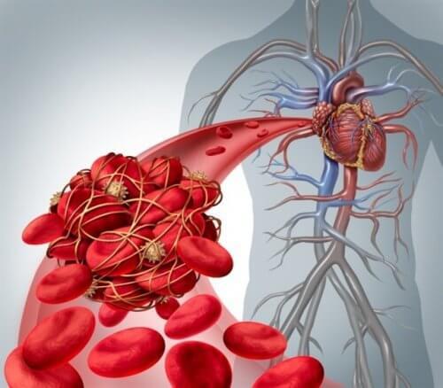 التجلطات الدموية والسكتات الدماغية