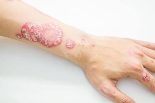 داء صدفية الجلد – تغلب على الصدفية بواسطة هذه العلاجات الطبيعية