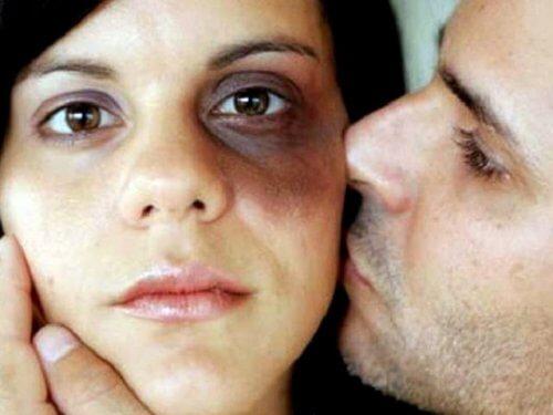 رجل يقبّل امرأة بعد أن تلقت الضرب