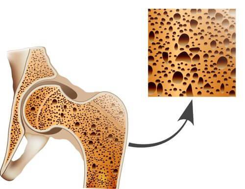 مكافحة هشاشة العظام – علاجات طبيعية تساعدك على مواجهة حالة تخلخل العظم