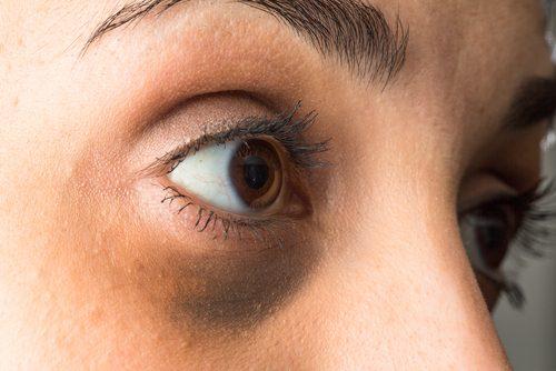 ما هي الأكياس الدهنية تحت العينين ؟