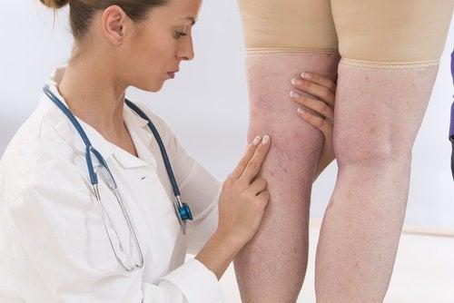 حالة احتباس السوائل - 4 علاجات طبيعية لاحتباس السوائل في الجسم