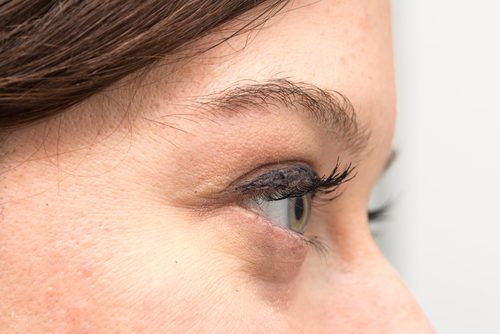 الأكياس الدهنية تحت العينين – المسببات ووسائل العلاج الطبيعية