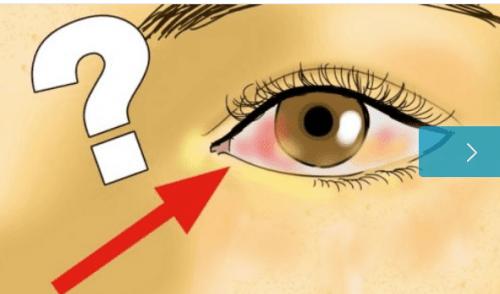 انفصال الشبكية – كل ما تحتاج إلى معرفته عن حالة انفصال الشبكية