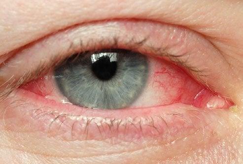 جفاف العينين