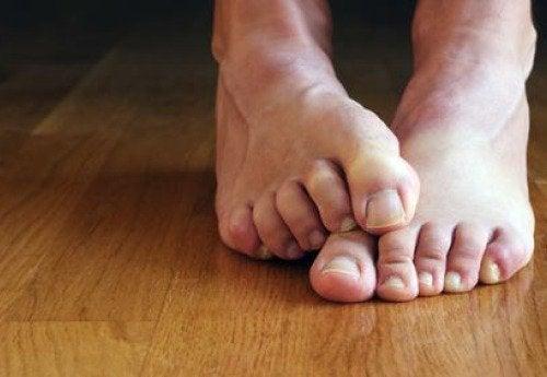 عدوى فطريات أظافر القدم - 7 أشياء تحتاج إلى معرفتها عن الحالة