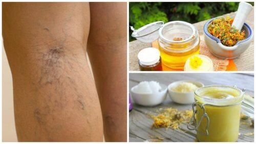 دوالي الساقين - طريقة علاج الدوالي باستخدام مرهم زهرة العطاس