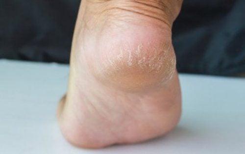 جفاف وتشقق الكعبين – 6 وسائل تستطيع من خلالها مكافحة هذه الأعراض