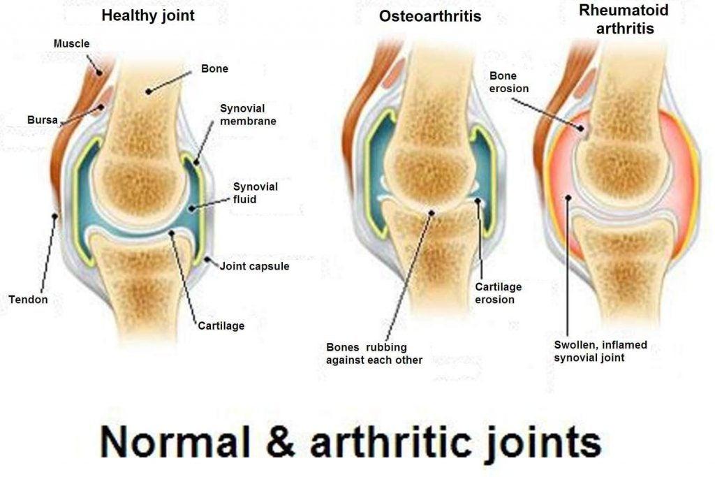 الأمراض التنكسية - الفرق بين التهاب المفاصل، الفصال العظمي وهشاشة العظام